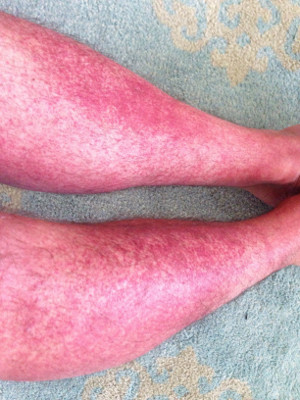 Red spots from allergy of Amoxicillin