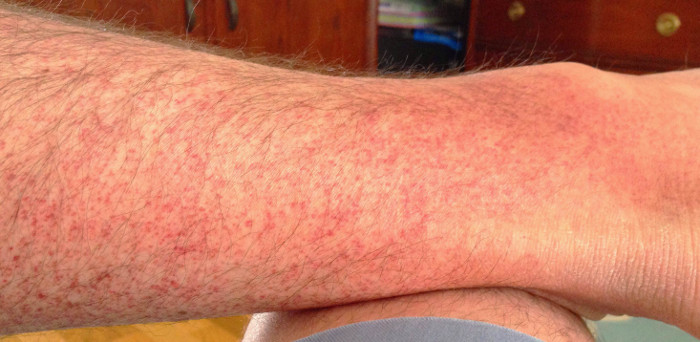 Amoxicillin allergic reaction red spots on skin