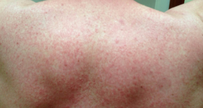 severe Amoxicillin allergy red skin